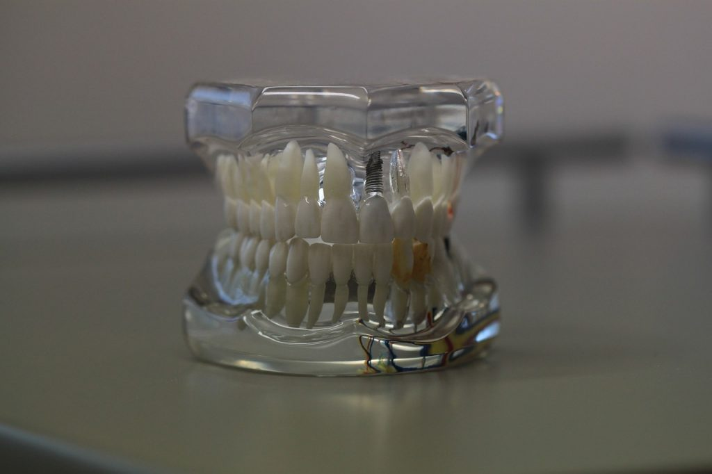 Model of teeth with visible cosmetic dental implant