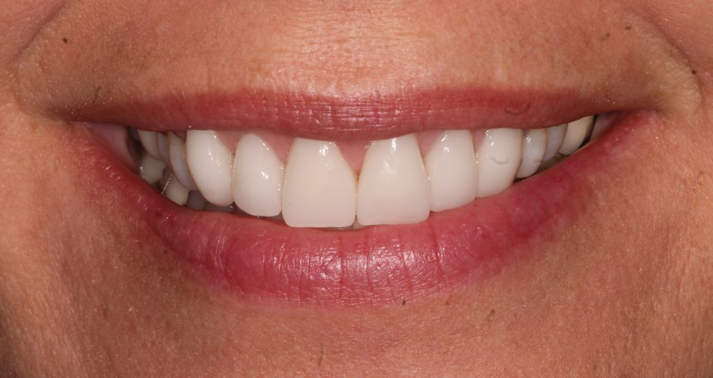a patient after her CEREC cosmetic dental treatment