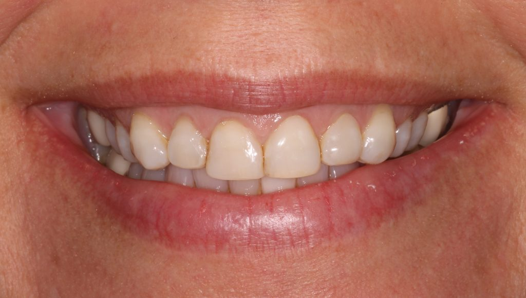 a patient before her cosmetic dental CEREC treatment