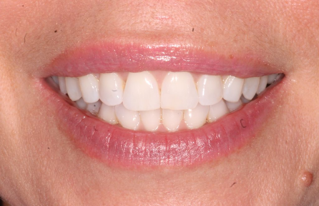 a patient after invisalign cosmetic dentistry